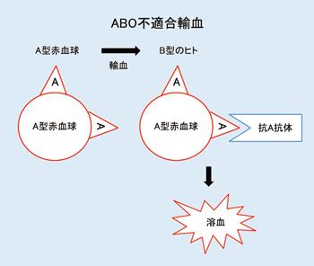 血液型」の検査について[ラボ NO.410(2013.3.発行)より] | 日本 ...
