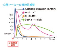 検査 ck 血液